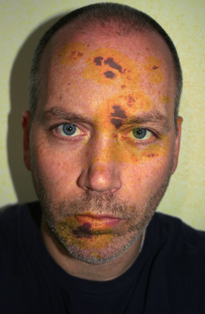 Self Portrait with Sun Spots, April 16