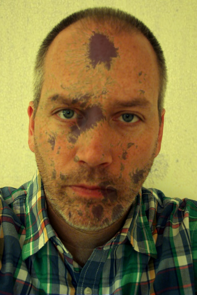 Self Portrait with Sun Spots, May 2