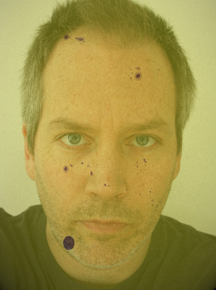Self Portrait with Sun Spots, March 1