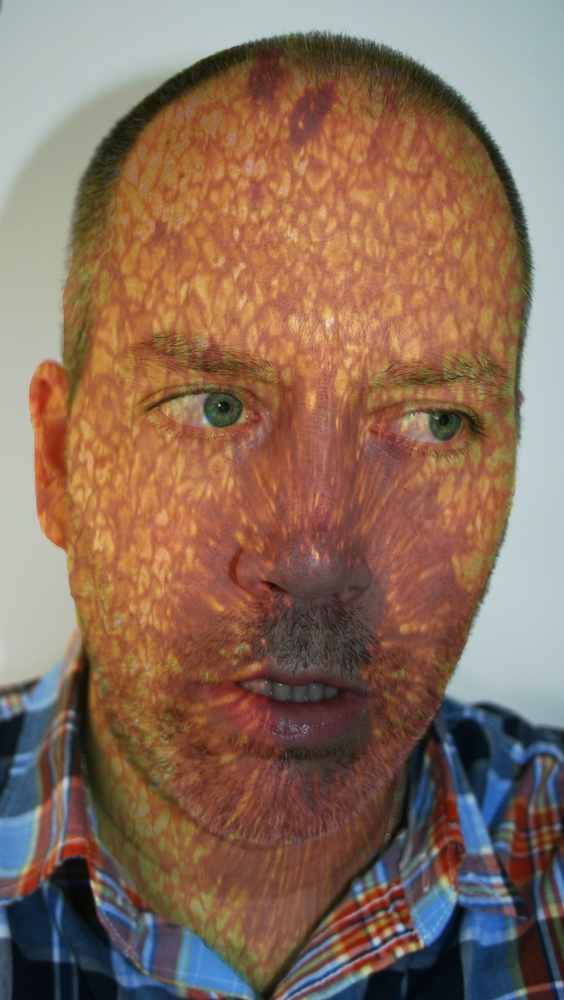 Self Portrait with Sun Spots, April 18