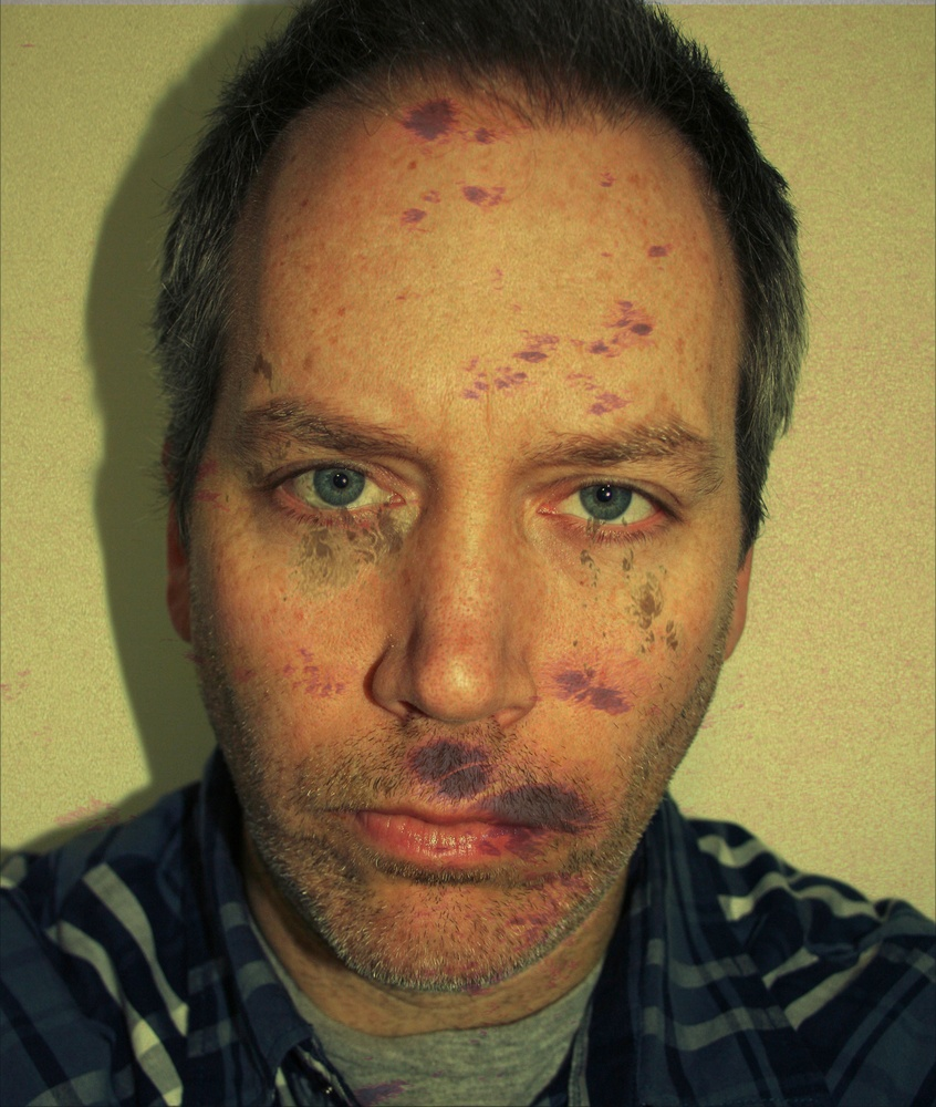 Self Portrait with Sun Spots (March 21)